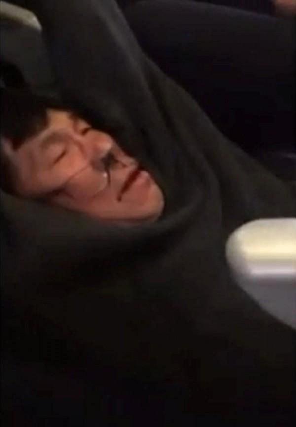 亞裔醫生杜成德,日前在聯航客機上遭暴力對待,強拖下機。(美聯社)