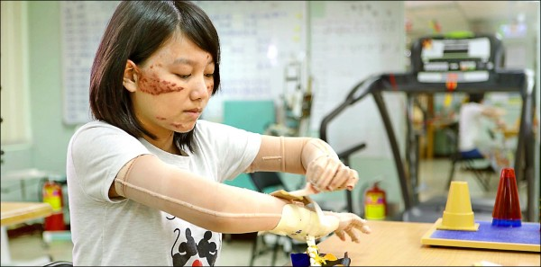 靖雯勇敢面對臉上傷疤,拍攝臉部平權影片希望鼓勵傷友。(陽光基金會提供)