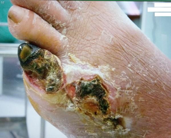 陳男到醫院時小拇指第一節已發黑壞死。(圖由醫院提供)
