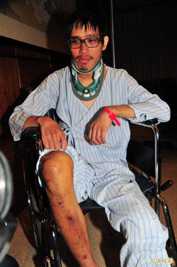 李明翰掀開褲子露出右腳膝蓋,在不知道自己右邊髖關節骨折的狀態下,他就靠著神之右膝和雙手爬上稜線求救。(記者花孟璟攝)