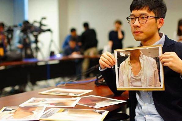 羅冠聰在記者會上展示在香港機場遇襲的傷勢。(圖擷自推特)