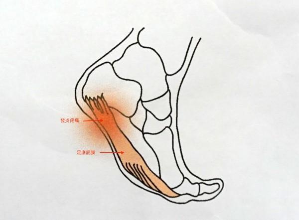 足底筋膜位於腳底趾骨到足跟的結締組織,是腳底足弓的主要支撐,過度拉扯、疲勞,會發炎疼痛。(記者蔡淑媛翻攝)