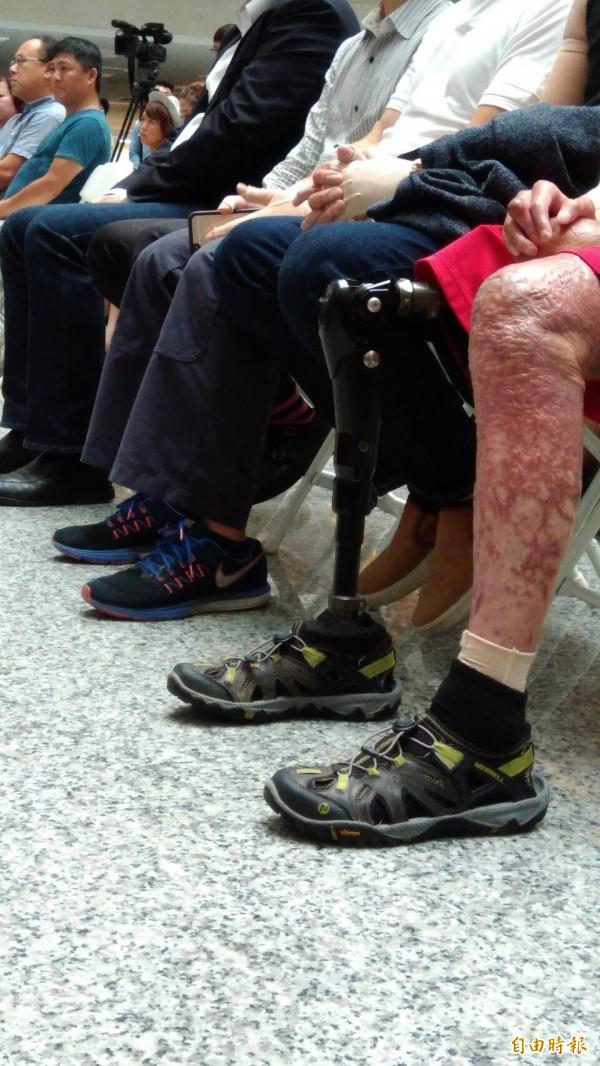氣爆三週年,傷者走過漫長重建之路。(記者蔡清華攝)