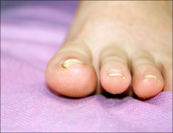 中、重度捲甲,先用指甲矯正器治療,若失敗則轉成手術治療。(照片提供/劉權毅)