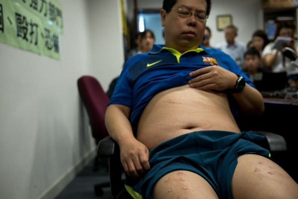 林子健於海灘上醒來後並未報警,選擇先聯絡民主黨,並保留傷痕到記者會上。(圖取自香港01)
