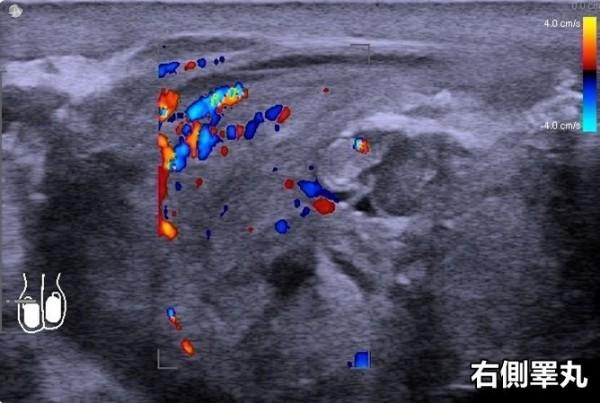 台中一名朱姓男子右側睪丸腫脹,超音波檢查發現睪丸左上方有明顯腫塊,確診為睪丸癌。(記者陳建志翻攝)