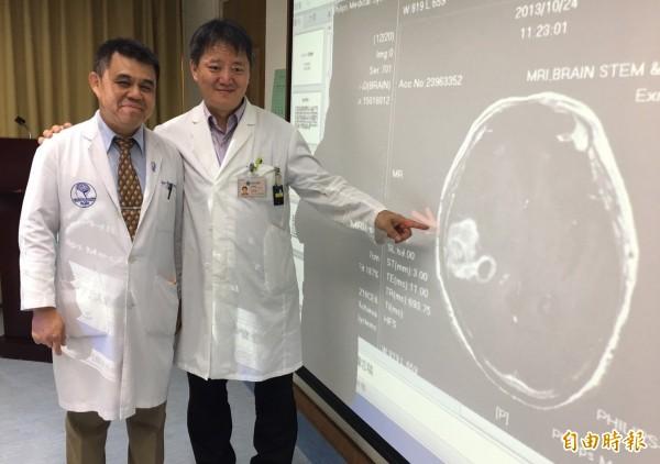 神經外科醫師李旭東(左)與放射腫瘤科醫師游惟強(右)指分別為廖阿公切除神經膠母細胞瘤和術放局部加強放療,提高存活率。(記者蔡淑媛攝)