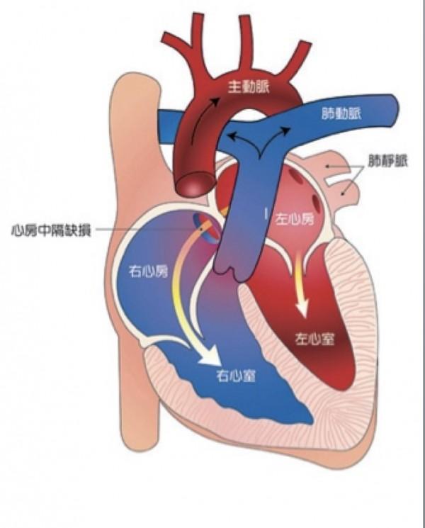 黃姓少年罹患心房中膈缺損,左心房血液灌流到右心房,造成右心擴大,且合併肺動肺狹窄。(記者蔡淑媛翻攝)
