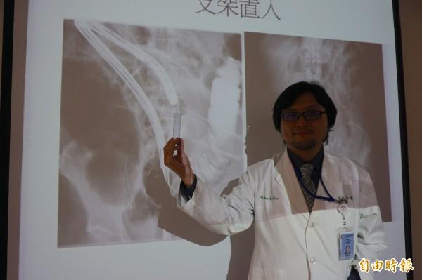 醫師許倍豪為這名腸阻塞的阿公患者,在腫瘤處放置大腸支架通腸,解決腹脹和腹便問題。(記者蔡淑媛攝)