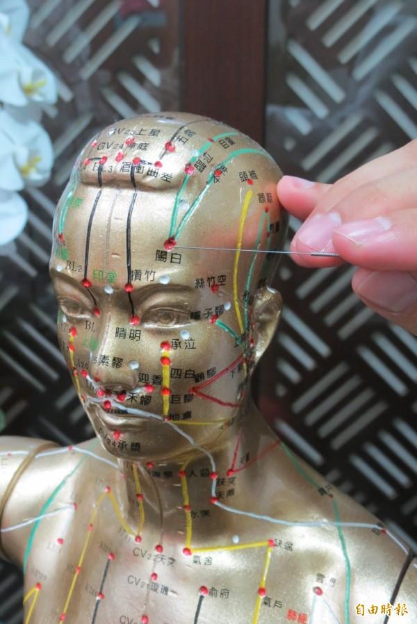 阿嬤突顏面神經麻痺眼歪嘴斜,靠針灸終於「眉開眼笑」。(記者蘇孟娟攝)