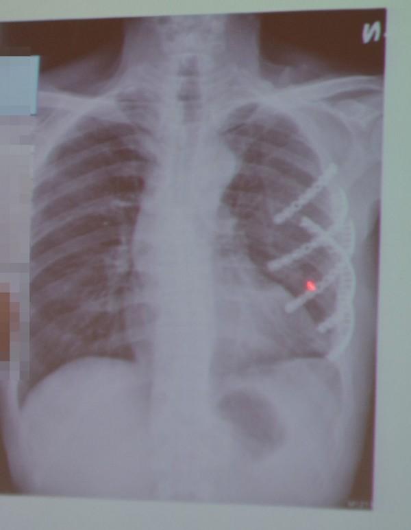 台中吳姓民眾從5樓墜地,胸腔嚴重骨折、出血,X光片可看出醫師以5根鈦鋼板將左側骨折肋骨固定。(記者陳建志翻攝)