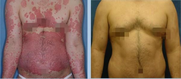 中、重度的乾癬患者經治療後也能控制穩定,恢復原有皮膚。(記者蔡淑媛翻攝)
