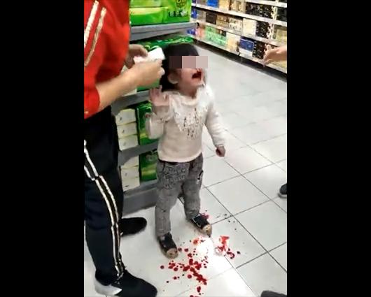 中國一名4歲女童在與家人在超市購物後,哭鬧不願離開,竟被一旁身穿黑衣似是家人的男子狠摑巴掌。打得女童鼻血直流,且滿地都是鮮血。(圖翻攝自《中華網》)