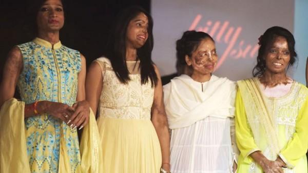 印度組織「要愛不要傷疤」(Make Love Not Scars)今(26)日在新德里為潑酸攻擊事件倖存者舉辦首場高級女裝時尚秀,希望能藉此讓這些毀容的倖存者重拾信心。(圖取自澳洲SBS)