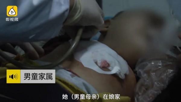 中國福建一名幼童被媽媽持剪刀刺破右肺。(圖擷自梨視頻)