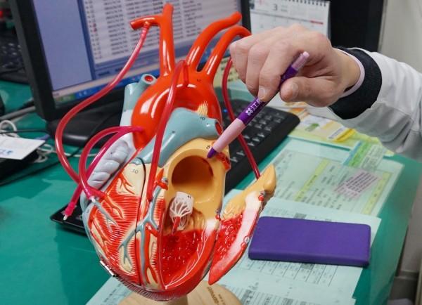 心房顫動患者是腦中風、心肌梗塞的高風險族群,醫師也提醒,和一般人相較,心房顫動的患者中風機率高出3到5倍,且心衰竭和死亡率也較高。(記者歐素美攝)