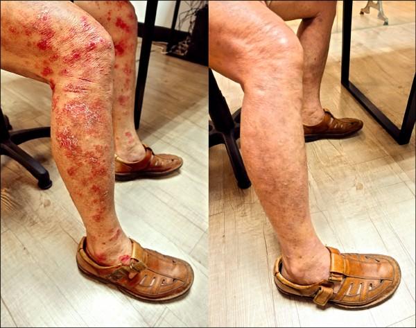 ▲下肢皮膚炎治療前(左)及治療後。(照片提供/陳韋綸)