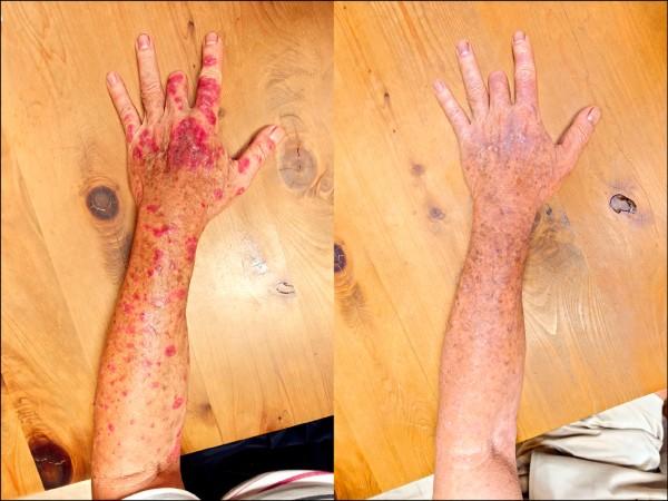 ▲上肢皮膚炎治療前(左)及治療後。(照片提供/陳韋綸)