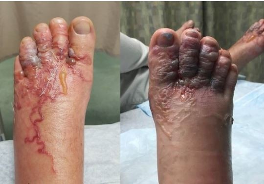 赤腳在加勒比海沙灘漫步,竟罹患「幼蟲移行症」的夫婦,將慘狀照片上傳臉書,讓大家警惕。(圖擷取自facebook)