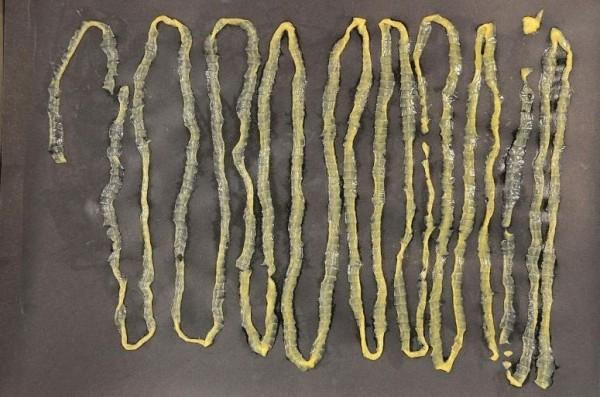 一名每日食用生魚片的男子,拉出一條2.8公尺的絛蟲,長到須折疊18次才能完全入鏡。(圖擷取自新加坡中央醫院官網)