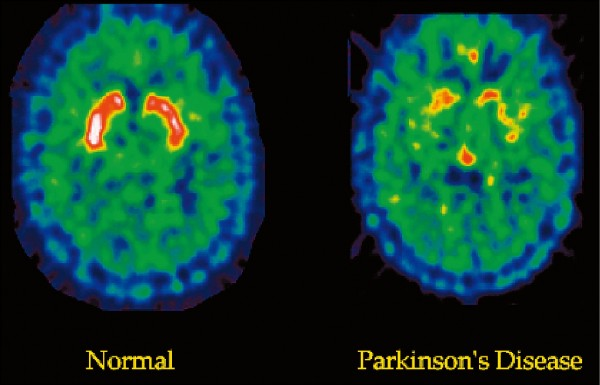 圖為帕金森氏症患者大腦掃描影像與正常人的比對。(取自網路)