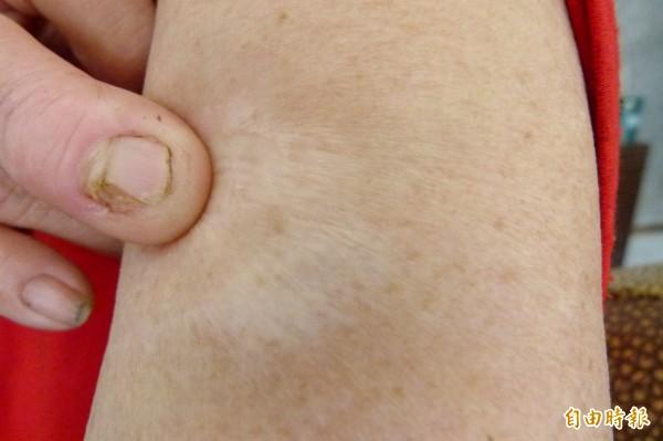 王姓婦人多年前被狗咬,左上臂所留下的疤痕。(記者蔡宗勳攝)