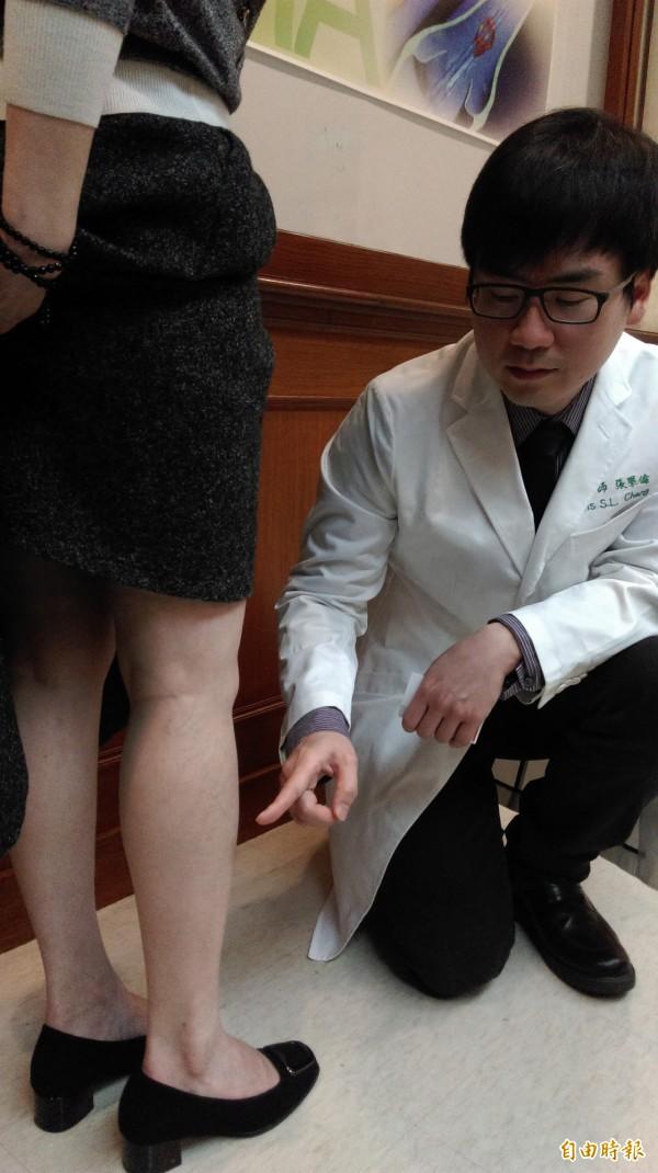 靜脈曲張現象常發生在腿部。(記者吳亮儀攝)