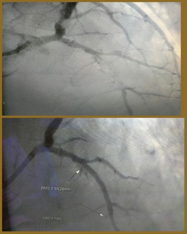 李婦心導管影像,圖下血管打通後,2箭頭所指之間已恢復血流。(記者陳冠備翻攝)