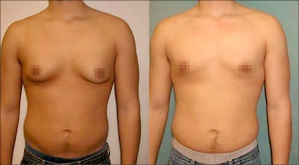 美國內分泌學會即將發表最新研究顯示,年輕男孩胸部變大、女乳化等發育異常現象,疑似與長期使用薰衣草精油、茶樹精油所含的部分化學物質有某關聯性。 (圖:取自外電網路資料)