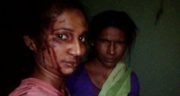 印度23歲女性梅斯拉姆(左)為搶救她的山羊,手持棍棒勇打老虎,整張臉布滿血跡。(圖擷取自《BBC》)