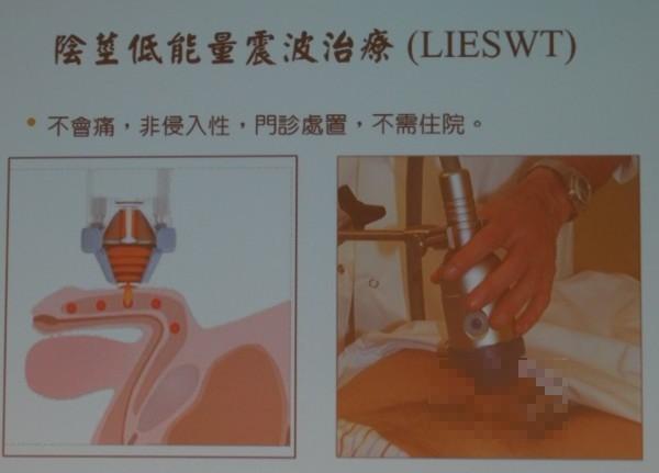郭綜合醫院泌尿科主治醫師陳秉鴻表示,對於血管性引起的男性勃起障礙,可用低能量震波來治療。(記者王俊忠翻攝)