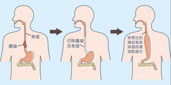 食道癌手術方式。(台北慈濟醫院提供)