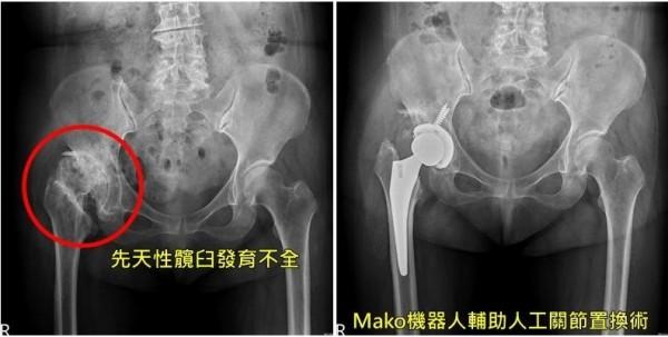 台中一名徐姓婦人右腳罹患「先天性髖臼發育不全」(左),因長短腳去年開始痛到無法走,透過「機器人輔助人工關節置換術」治療後(右),已經恢復正常行走。(記者陳建志攝)