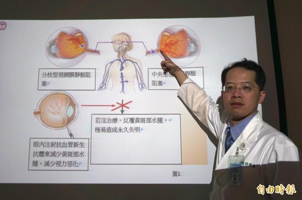 醫師許閔彥指患者的視網膜的中央靜脈阻,造成眼中風。(記者蔡淑媛攝)