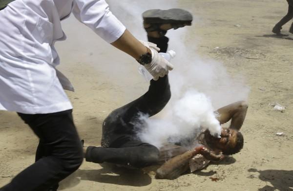 在日前的抗議活動中,1名巴勒斯坦男子被催淚瓦斯擊中臉部,白煙從他口鼻部噴出,畫面怵目驚心。(美聯社)
