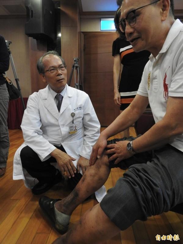 李先生(右)飽受靜脈曲張症困擾近30年,手術後病痛改善,發黑的皮膚也逐漸恢復正常。(記者方志賢攝)