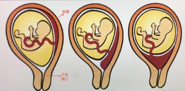 正常胎盤位於子宮頂部圖左)前置胎盤部分檔住子宮頸(圖中)或完全檔住子宮頸口。(記者蔡淑媛翻攝)