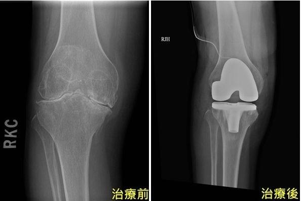 台中一名張先生因從小罹患血友病,右膝出現嚴重膝關節病變(左),經進行全人工膝關節置換手術後(右)重返工作崗位。(記者陳建志翻攝)
