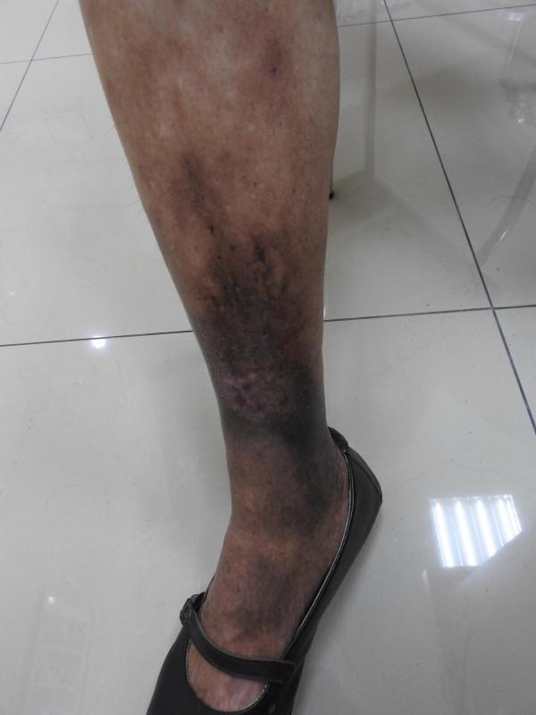 歐婦接受微創雷射手術,將病變的靜脈燒灼閉合,術後1個月傷口癒合。(記者方志賢攝)