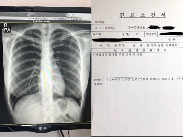 網紅崔素美在社群網路PO出她的X光照和診斷書,向世人證明巨乳為真奶。(圖擷取自Instagram)