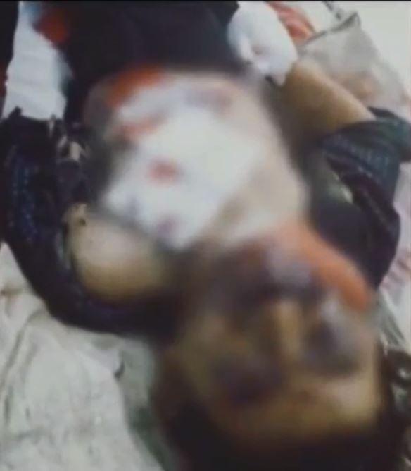 小松雙手手掌被炸飛,身體多處部位也遭感染。(圖擷取自「秒拍」)