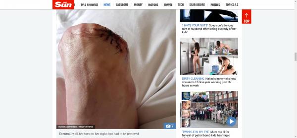 女子的腳趾因為進一步感染,全數遭截肢。(擷自太陽報)