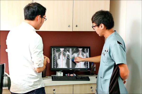 民眾可以透過身體前彎、外觀等初步判斷是否有脊椎側彎,但若要精確判斷仍要照X光,透過判讀了解側彎角度。(記者沈昱嘉/攝影)