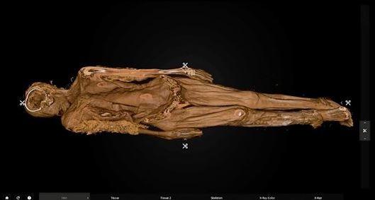 紐約工人挖到一具棺材,當下以為是命案現場,專家鑑定後才得知,屍體是19世紀時死於天花的年輕非裔女性。(圖擷自推特)