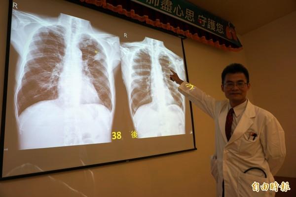 醫師陳鴻仁指患者左上肺4公分腫瘤,經化療和免疫治療,縮小至1公分。(記者蔡淑媛攝)