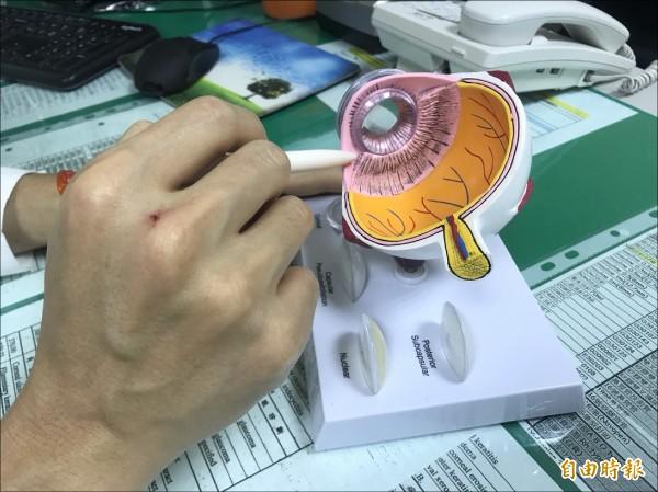 烏日林新醫院眼科主任薛維禎主任指出,眼球內負責調節水晶體的肌肉「睫狀肌」出現無力時,就容易罹患老花眼。(記者陳建志攝)