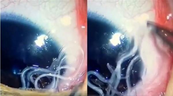 日前一名5個月大男嬰左眼不適,被醫生夾出11條寄生蟲。(圖擷取自微博)