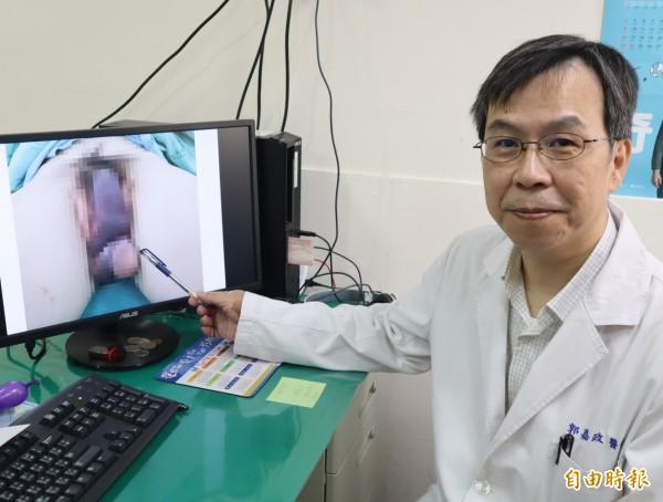 豐原醫院泌尿外科醫師郭嘉政表示,廖男陰莖骨折,紫脹彎曲如薩克斯風的形狀。(記者歐素美攝)