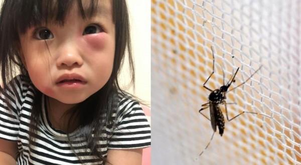 可愛女兒被蚊子「家暴」 左眼腫一包讓網友好心疼