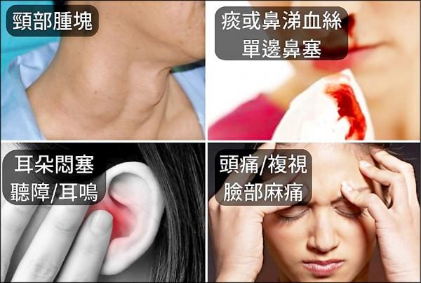 ▲鼻咽癌初診斷4大常見症狀。(照片提供/溫惟昇)